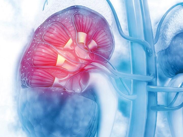 La terapia dietetica mirata dell'Insufficienza Renale Cronica